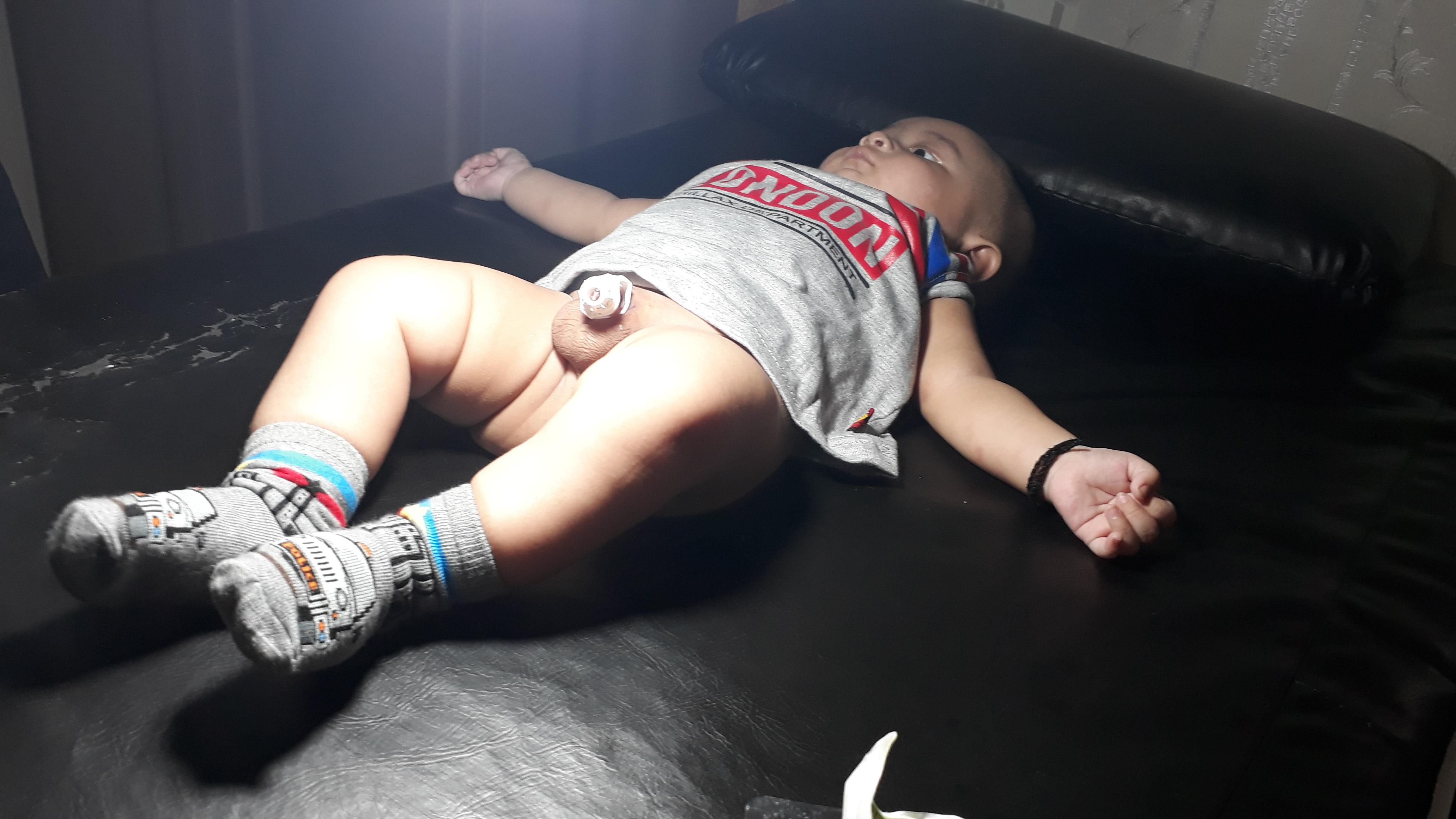 Sunat Bayi - Semarang