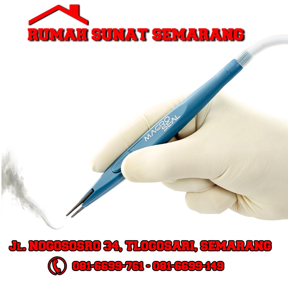 Sunat Bipolar Tech Sunat Semarang