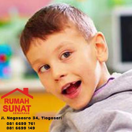 anak kebutuhan khusus - Sunat Semarang
