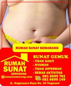 masalah kesehatan yang bisa muncul akibat perut buncit, Sunat Semarang